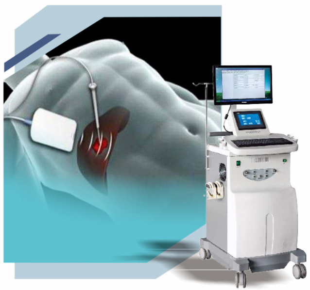 肿瘤治疗新方法,肿瘤治疗新方向,肿瘤微创介入